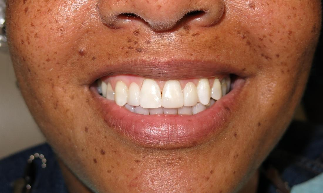 woman with complete smile after dental crowns I lake charles, la
