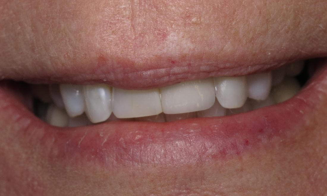 patient after dental implant with full front tooth I scott m. hannaman dds