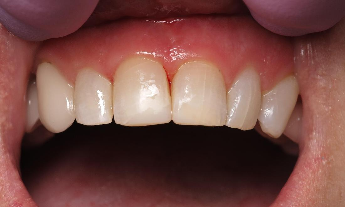 dental patient after dental bonding with complete front tooth I scott m. hannaman dds