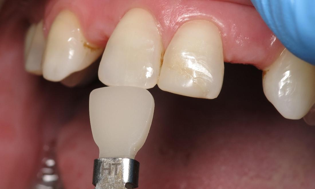 woman with missing teeth before dental crowns I scott m. hannaman, dds
