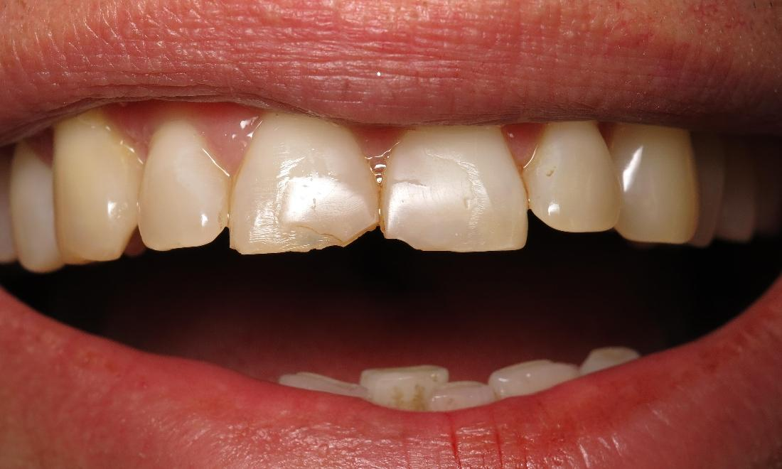dental patient before dental crown procedure I scott m. hannaman dds