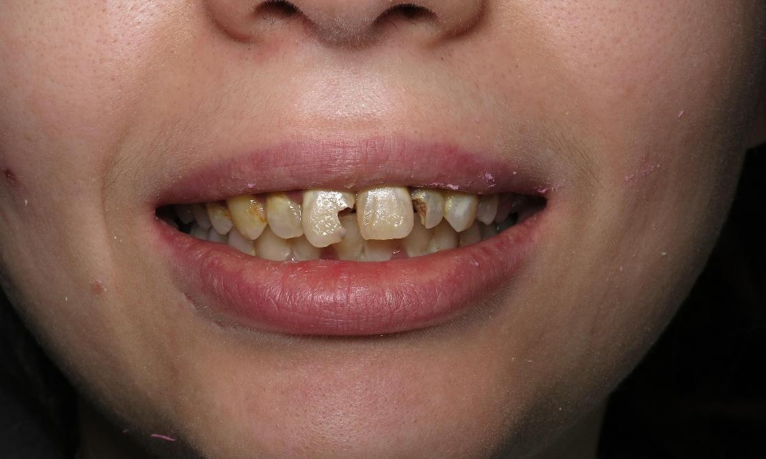 chipped, stained teeth before dentures I Scott M. Hannaman, DDS