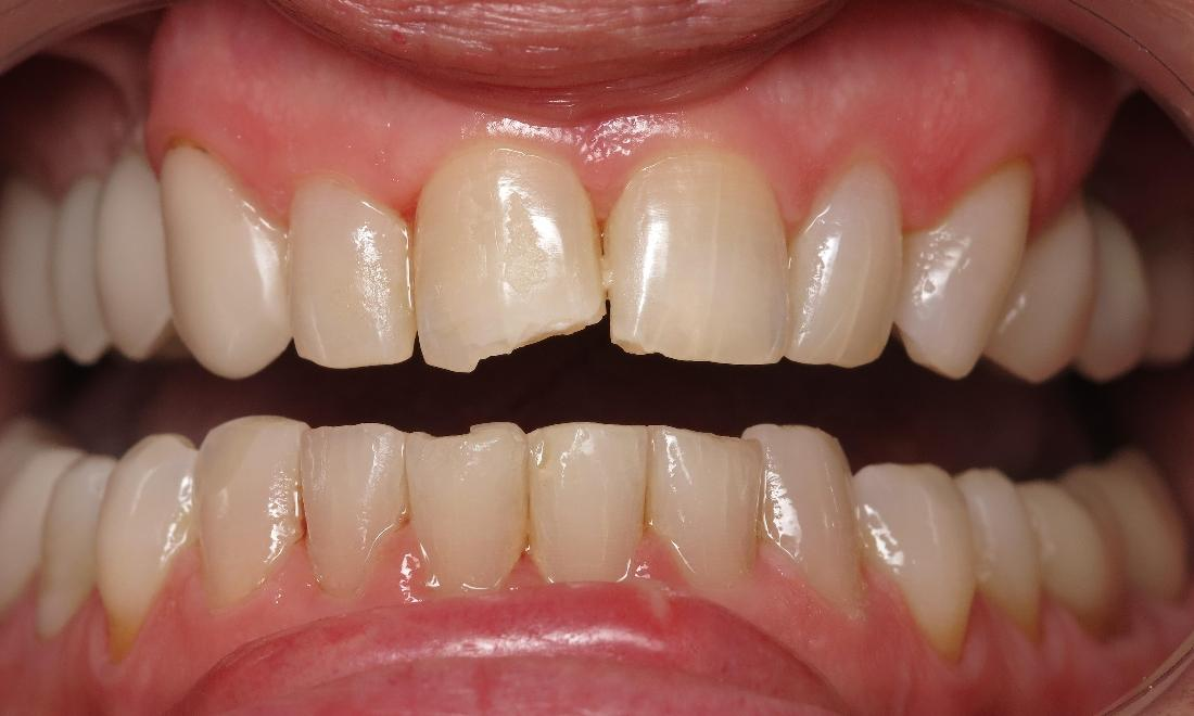 dental patient with chipped front tooth I dental bonding in lake charles la