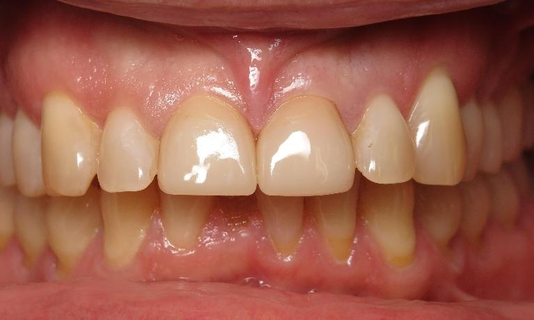 Broken-Tooth-CEREC-Crown-After-Image