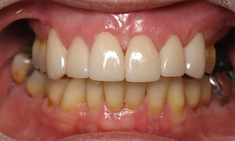 Front-Crowns-and-Veneers-After-Image