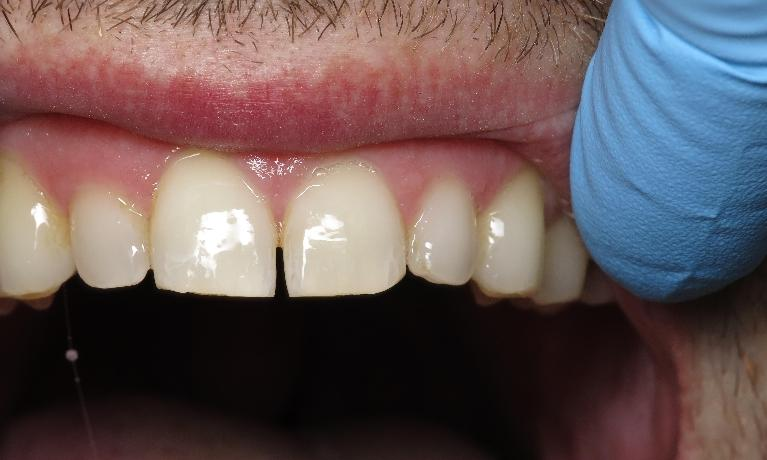 Gingivitis-After-Image