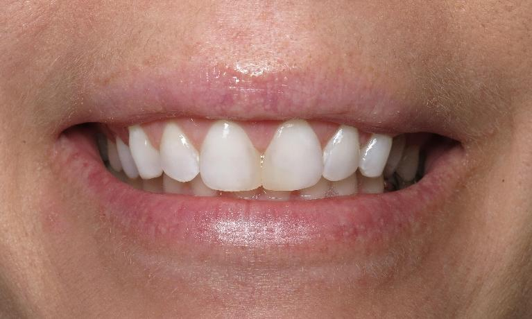 Gum-Lift-and-Teeth-Whitening-After-Image
