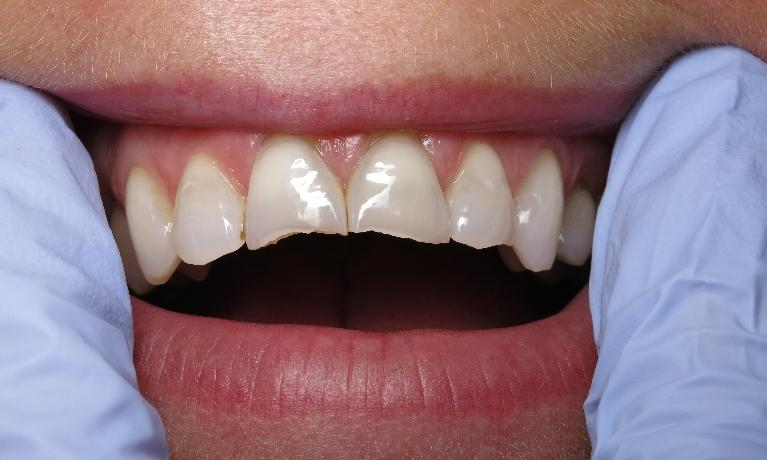Crowns-and-Veneers-Before-Image
