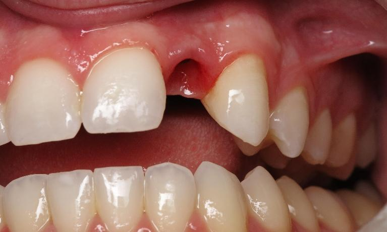 Dental-Implant-Before-Image