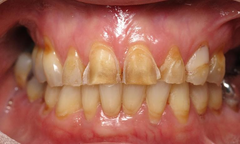 Front-Crowns-and-Veneers-Before-Image