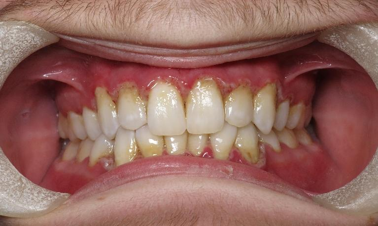 Gingivitis-Before-Image