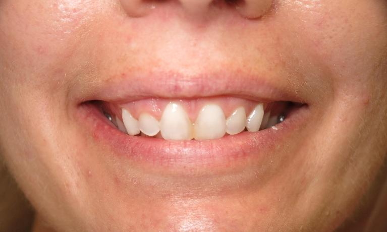 Gum-Lift-and-Teeth-Whitening-Before-Image